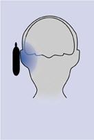 Danni al cervello dei cellulari